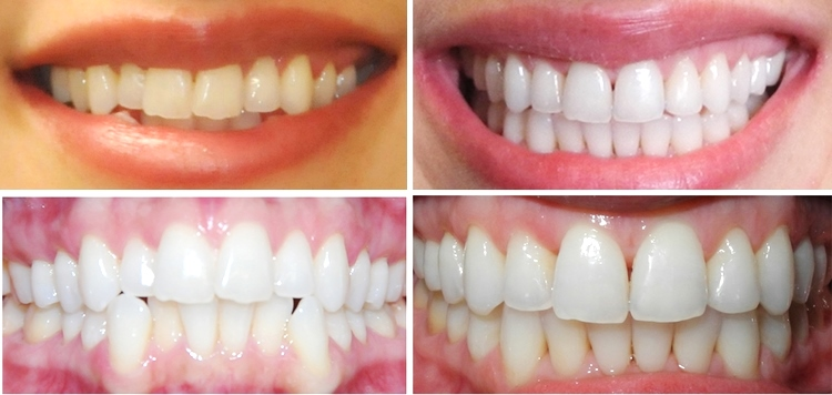 Kare Dental Teeth Whitening