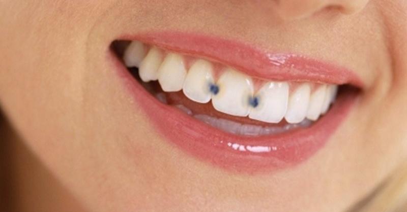 Kare Dental Vancouver - Cavities