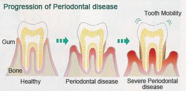 Kare Dental Vancouver - Periodontal Disease