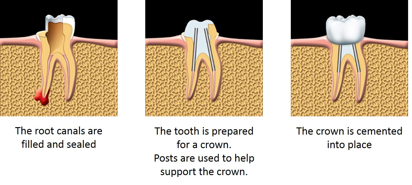 Root Canal Treatment Vancouver How Root Canal Treatment is done