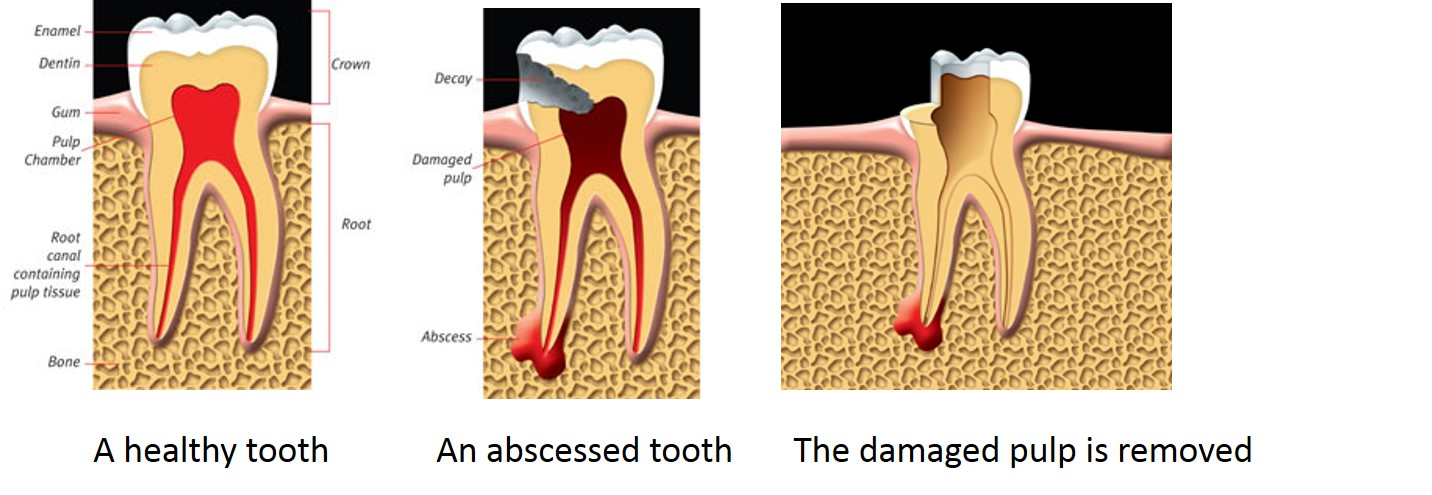 Root Canal Treatment Vancouver What is Root Canal Treatment